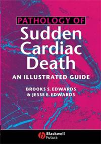 Pathology of Sudden Cardiac Death: An Illustrated Guide