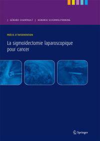 La Sigmoidectomie Laparoscopique Pour Cancer: Precis D'Intervention