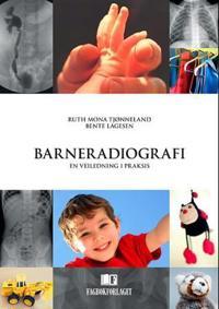Barneradiografi