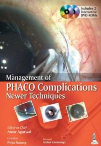 Management of Phaco Complications