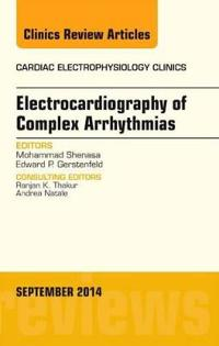 Electrocardiography of Complex Arrhythmias