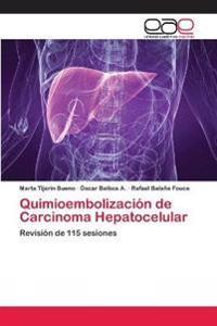 Quimioembolización de Carcinoma Hepatocelular