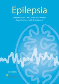 Epilepsia