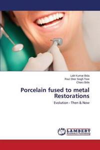 Porcelain Fused to Metal Restorations