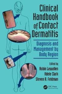Clinical Handbook of Contact Dermatitis