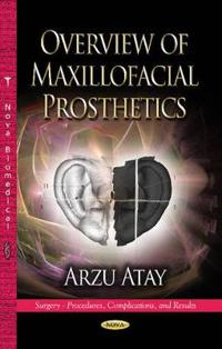 Overview of Maxillofacial Prosthetics