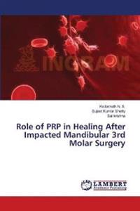 Role of Prp in Healing After Impacted Mandibular 3rd Molar Surgery