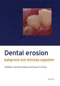 Dental erosion : bakgrund och kliniska aspekter
