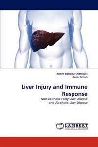 Liver Injury and Immune Response