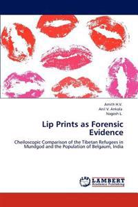 Lip Prints as Forensic Evidence