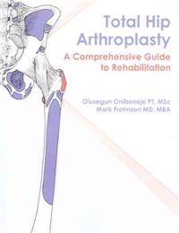 Total Hip Arthroplasty: A Comprehensive Guide to Rehabilitation