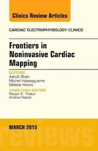 Frontiers in Noninvasive Cardiac Mapping