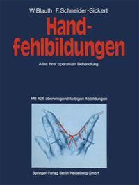 Handfehlbildungen