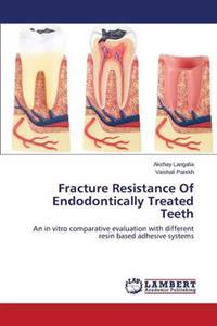 Fracture Resistance of Endodontically Treated Teeth