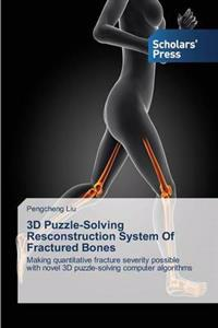3D Puzzle-Solving Resconstruction System of Fractured Bones