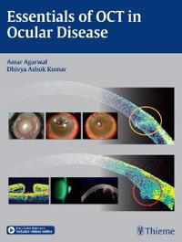 Essentials of OCT in Ocular Disease