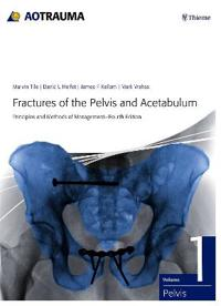 Fractures of the Pelvis and Acetabulum