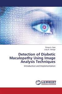 Detection of Diabetic Maculopathy Using Image Analysis Techniques