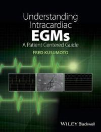 Understanding Intracardiac Egms: A Patient Centered Guide