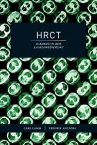 HRCT - diagnostik och sjukdomsöversikt