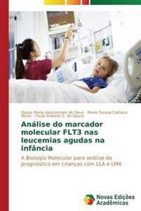 Analise Do Marcador Molecular Flt3 NAS Leucemias Agudas Na Infancia