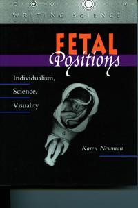 Fetal Positions