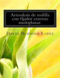 Artrodesis de Rodilla Con Fijador Externo Multiplanar.