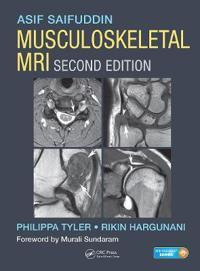 Musculoskeletal MRI, Print and Online
