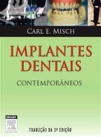 Implantes Dentais Contemporaneos