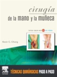 Cirugia de la mano y la muneca
