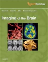 Imaging of the Brain E-Book