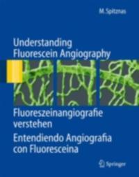 Understanding Fluorescein Angiography, Fluoreszeinangiografie verstehen, Entendiendo Angiografia con Fluoresceina
