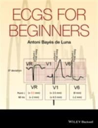 ECGs for Beginners