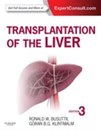 Transplantation of the Liver E-Book