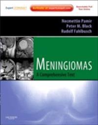 Meningiomas E-Book