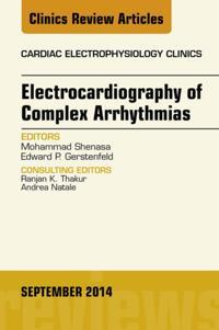Electrocardiography of Complex Arrhythmias, An Issue of Cardiac Electrophysiology Clinics, E-Book