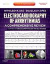 Electrocardiography of Arrhythmias