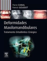 Deformidades Maxilo-mandibulares