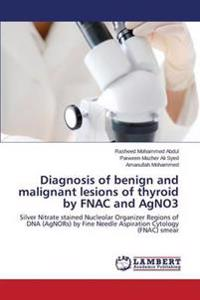 Diagnosis of Benign and Malignant Lesions of Thyroid by Fnac and Agno3