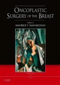 Oncoplastic Surgery of the Breast