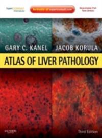 Atlas of Liver Pathology E-Book