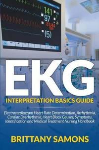 EKG Interpretation Basics Guide
