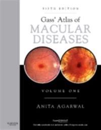 Gass' Atlas of Macular Diseases E-Book
