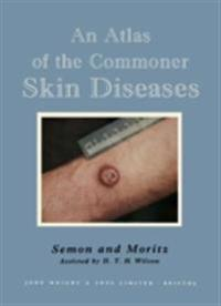 Atlas of the Commoner Skin Diseases