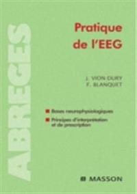 Pratique de l'EEG