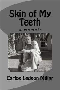 Skin of My Teeth: A Memoir