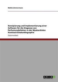 Konzipierung Und Implementierung Einer Software Fur Die Diagnose Von Perfusionsdefekten in Der Myokardialen Kontrast-Echokardiographie