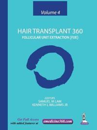 Hair Transplant 360