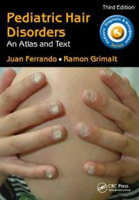 Pediatric Hair Disorders