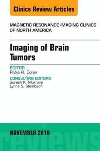 Imaging of Brain Tumors